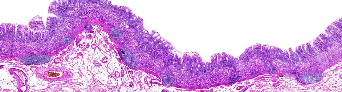Journée Cas Cliniques Interactifs : le Système Digestif